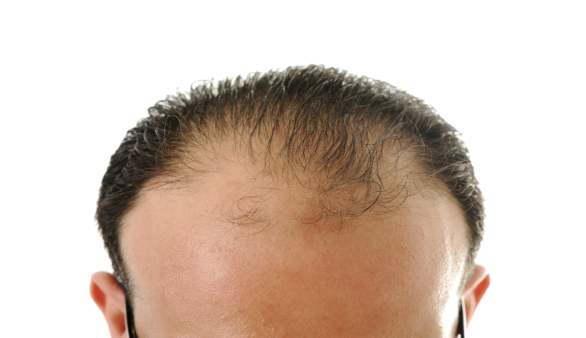 Kann eine Diät zu Haarausfall führen?